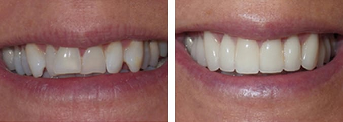 Cosmetic Dental Before & After