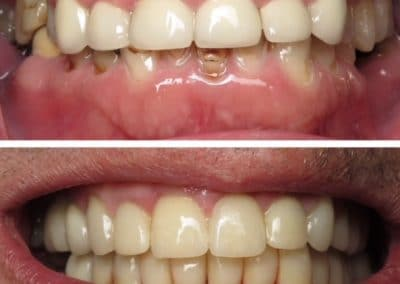 Before & After Dental Treatment