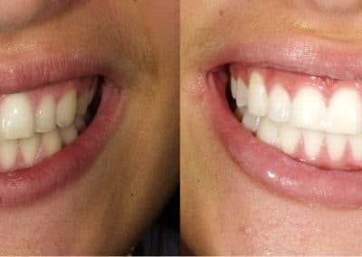 Dental Treatment Before & After
